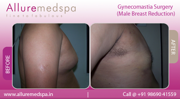 Before & After Gallery For Gynecomastia/Male Breast Reduction in Mumbai, India