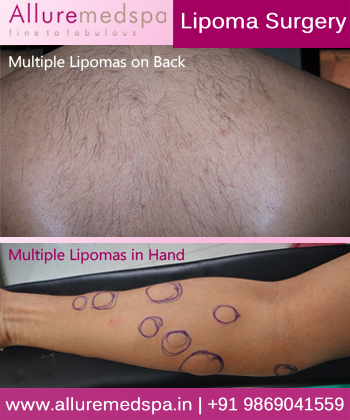 Multiple Lipomas Removal Surgery in Mumbai, India
