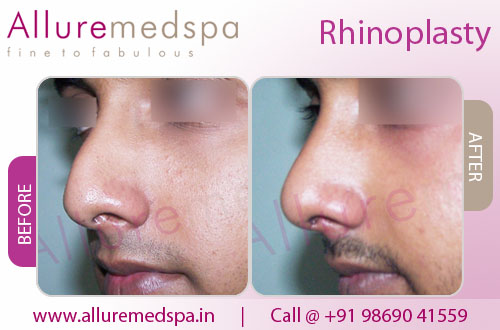 Rhinoplasty (Nose job)- Before and After in Andheri, Mumbai, India
