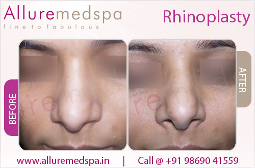 Rhinoplasty- Before and After in Mumbai, India