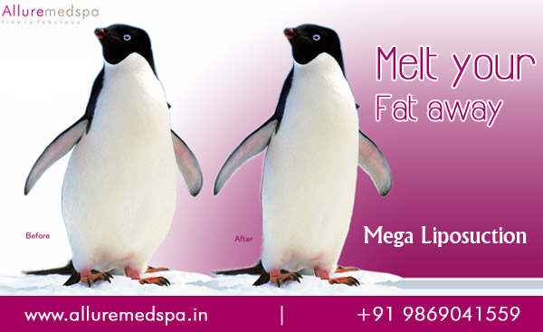 Mega liposuction Surgery | Mega Volume Liposuction Surgery | large Volume Liposuction in Mumbai, India