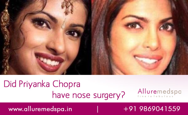 Priyanka Chopra Nose Surgery Before and after Photos