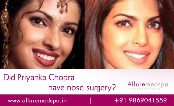 Priyanka Chopra Nose Surgery Before and after Photos