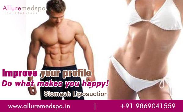 Stomach Liposuction | Tummy tuck Surgery | Abdominoplasty in Mumbai, India