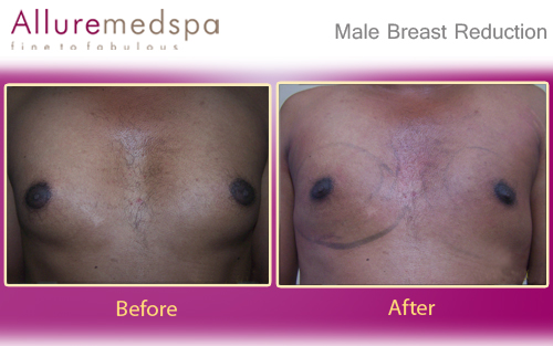 Male Breast Reduction Surgery Before and After Pictures in Mumbai, India