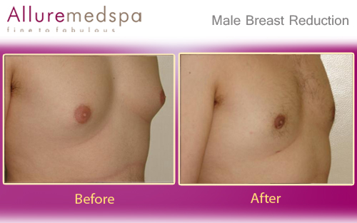 Male Breast Reduction Before after Photos | Gynecomastia Before after Pictures in Mumbai, India