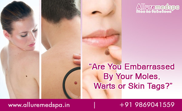Mole, Wart & Tags Removal Treatment in Andheri, Mumbai, India