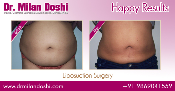 Liposuction Surgery Before and After Result in Mumbai, India