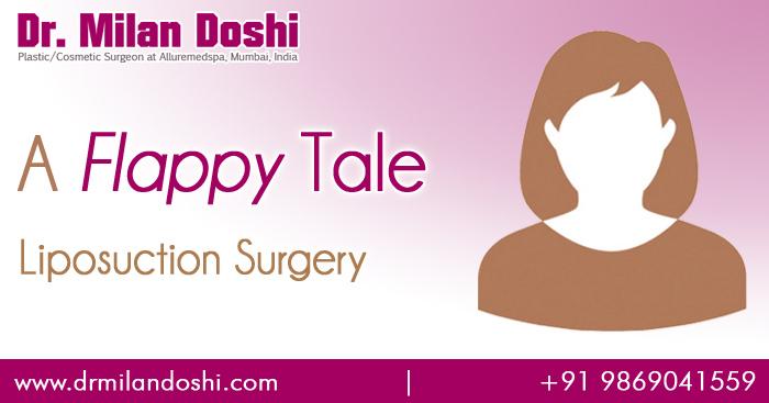 Liposuction Surgery Testimonials