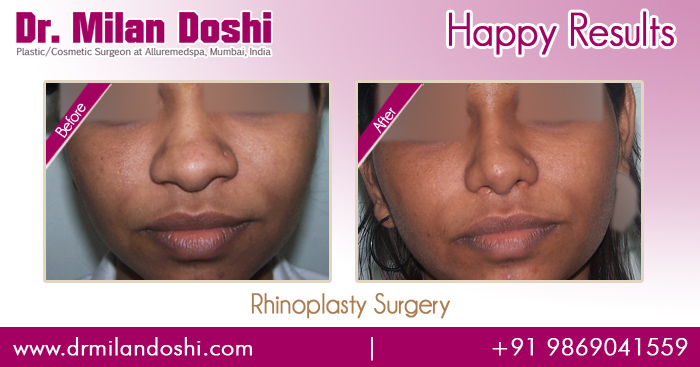 Rhinoplasty Surgery Before and After Images in Mumbai, India