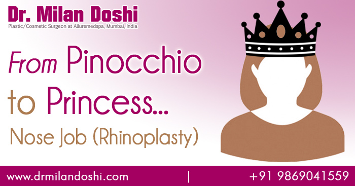 My Rhinoplasty Ramble