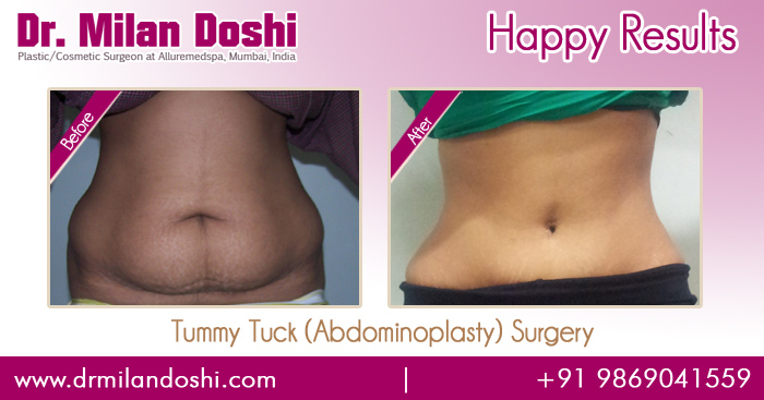Tummy Tuck Surgery Before and After Images