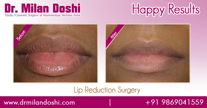Lip Reduction Surgery Before and After Images