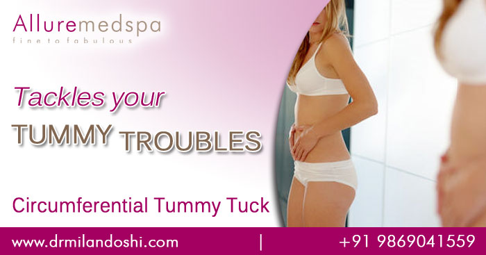 Circumferential tummy tuck procedure mumbai India