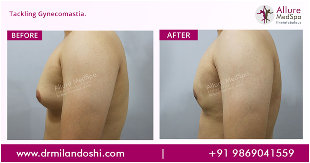 Dr Milan Doshi - Gynecomastia Before and After