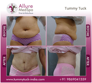 Tummy Tuck Female Before and After Image