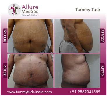 Tummy Tuck Male Before and After Image