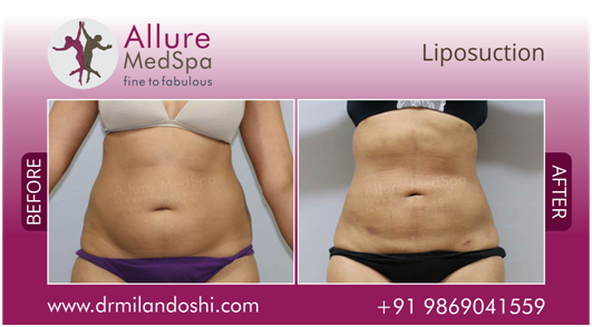 Liposuction Surgery Before and After Photo