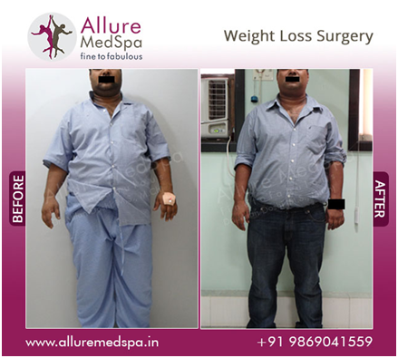 Weight loss surgery before and after image