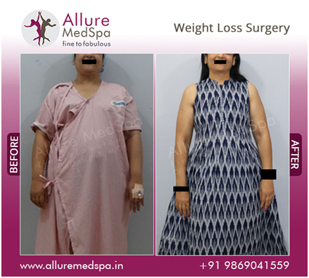 Bariatric Surgery before and after image