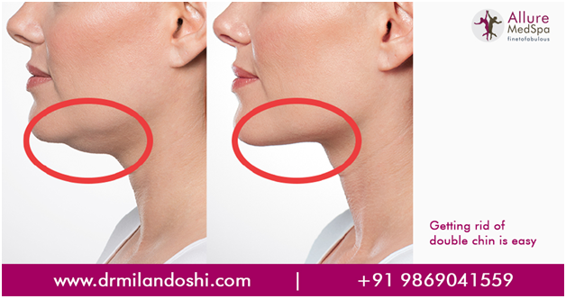 Chin Liposuction in Mumbai, India