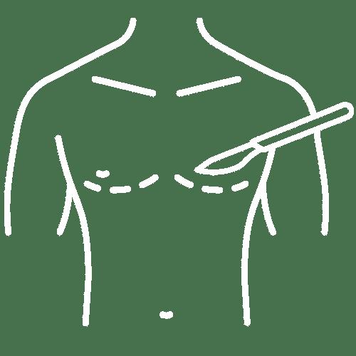 Gynecomastia in Mumbai, India