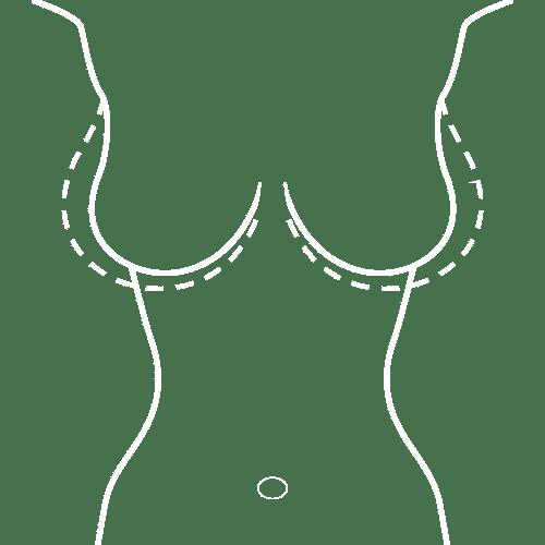 Breast Implant in Mumbai, India
