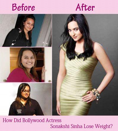 Sonakshi Sinha - Liposuction