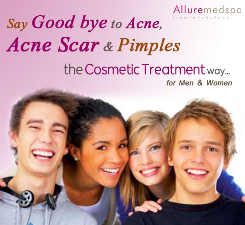 Acne and Acne Scars Removal Treatment in Mumbai,India