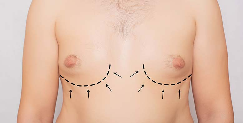 Gynecomastia Surgery in Mumbai, India