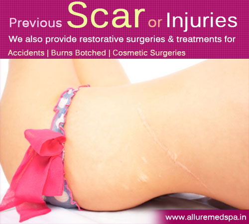 Scar Revision Surgery in Mumbai, India